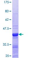 ING4 Protein - 12.5% SDS-PAGE Stained with Coomassie Blue.