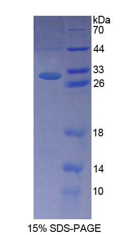 INVS / Inversin Protein - Recombinant  Nephronophthisis 2, Infantile By SDS-PAGE