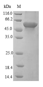 IP6K1 Protein - (Tris-Glycine gel) Discontinuous SDS-PAGE (reduced) with 5% enrichment gel and 15% separation gel.