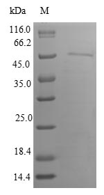 IRGM / LRG-47 Protein - (Tris-Glycine gel) Discontinuous SDS-PAGE (reduced) with 5% enrichment gel and 15% separation gel.