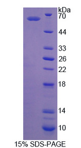 IRS Protein - Recombinant Isoleucyl tRNA Synthetase By SDS-PAGE