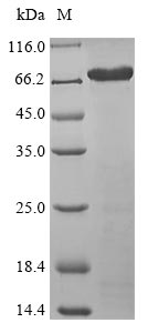 ISM1 Protein - (Tris-Glycine gel) Discontinuous SDS-PAGE (reduced) with 5% enrichment gel and 15% separation gel.