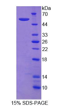 ITGA9 / Integrin Alpha 9 Protein - Recombinant  Integrin Alpha 9 By SDS-PAGE