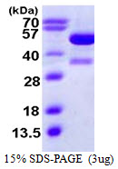 KAT2A / GCN5 Protein