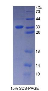 KATNA1 Protein - Recombinant  Katanin P60 Subunit A 1 By SDS-PAGE