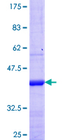 KCNV1 / Kv8.1 Protein - 12.5% SDS-PAGE Stained with Coomassie Blue.