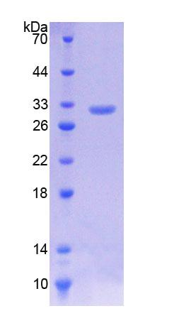 KLF5 / BTEB2 Protein - Recombinant  Kruppel Like Factor 5, Intestinal By SDS-PAGE