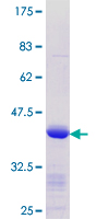 KLF8 Protein - 12.5% SDS-PAGE Stained with Coomassie Blue.