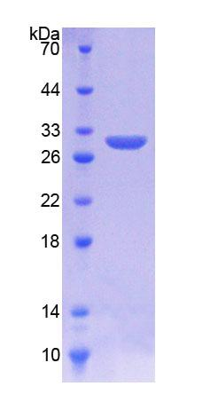 KREMEN1 / KREMEN-1 Protein - Recombinant  Kringle Containing Transmembrane Protein 1 By SDS-PAGE
