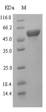 LAMA5 / Laminin Alpha 5 Protein - (Tris-Glycine gel) Discontinuous SDS-PAGE (reduced) with 5% enrichment gel and 15% separation gel.