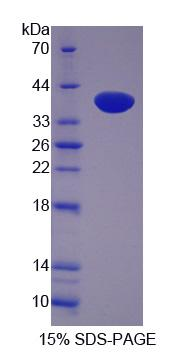 LASP1 Protein - Recombinant  LIM And SH3 Protein 1 By SDS-PAGE