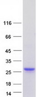 LCN2 / Lipocalin 2 / NGAL Protein - Purified recombinant protein LCN2 was analyzed by SDS-PAGE gel and Coomassie Blue Staining