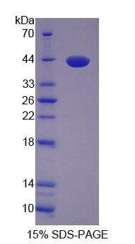 LDB1 / CLIM2 Protein - Recombinant  LIM Domain Binding Protein 1 By SDS-PAGE