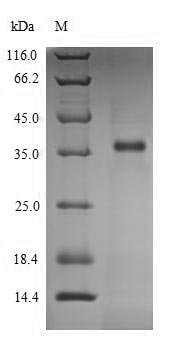 LDHC / Lactate Dehydrogenase C Protein - (Tris-Glycine gel) Discontinuous SDS-PAGE (reduced) with 5% enrichment gel and 15% separation gel.