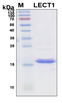 LECT1 / Chondromodulin-I Protein - SDS-PAGE under reducing conditions and visualized by Coomassie blue staining