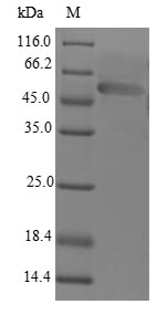 LECT1 / Chondromodulin-I Protein - (Tris-Glycine gel) Discontinuous SDS-PAGE (reduced) with 5% enrichment gel and 15% separation gel.