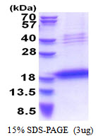 LECT1 / Chondromodulin-I Protein