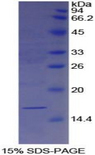 LGALS7 / Galectin 7 Protein - Recombinant Galectin 7 By SDS-PAGE