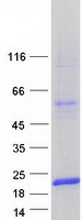 LGALS7 / Galectin 7 Protein - Purified recombinant protein LGALS7 was analyzed by SDS-PAGE gel and Coomassie Blue Staining