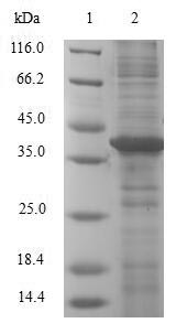 LGMN / Legumain Protein - (Tris-Glycine gel) Discontinuous SDS-PAGE (reduced) with 5% enrichment gel and 15% separation gel.