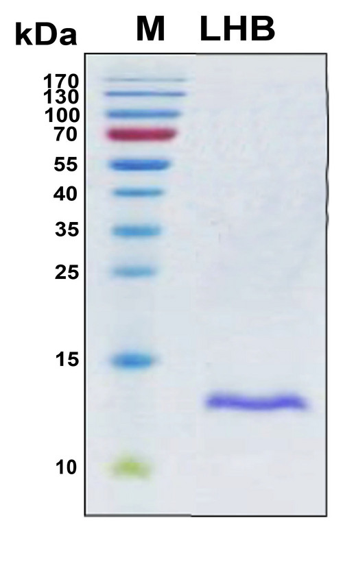 LHB / Luteinizing Hormone Protein - SDS-PAGE under reducing conditions and visualized by Coomassie blue staining