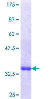 LIMD1 Protein - 12.5% SDS-PAGE Stained with Coomassie Blue.
