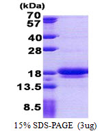 LIMD2 Protein