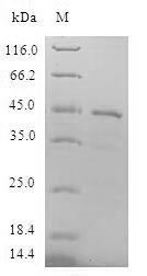LMO4 Protein - (Tris-Glycine gel) Discontinuous SDS-PAGE (reduced) with 5% enrichment gel and 15% separation gel.