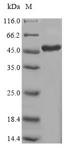 LSM4 Protein - (Tris-Glycine gel) Discontinuous SDS-PAGE (reduced) with 5% enrichment gel and 15% separation gel.
