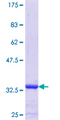 LSM4 Protein - 12.5% SDS-PAGE Stained with Coomassie Blue.