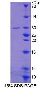 LUC7L3 / CROP Protein - Recombinant Cisplatin Resistance Associated Overexpressed Protein By SDS-PAGE