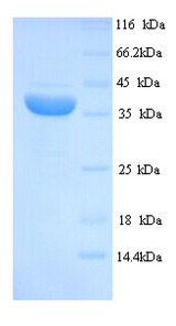 MAGEA1 / MAGE 1 Protein