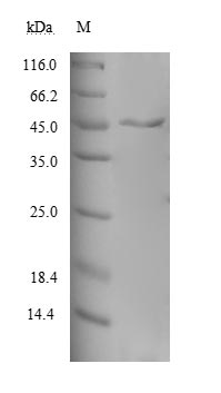 MAGOH Protein - (Tris-Glycine gel) Discontinuous SDS-PAGE (reduced) with 5% enrichment gel and 15% separation gel.