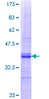 MAP1S Protein - 12.5% SDS-PAGE Stained with Coomassie Blue.