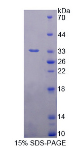 MAPRE1 / EB1 Protein - Recombinant  Microtubule Associated Protein RP/EB Family, Member 1 By SDS-PAGE