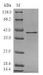 MARCKSL1 Protein - (Tris-Glycine gel) Discontinuous SDS-PAGE (reduced) with 5% enrichment gel and 15% separation gel.