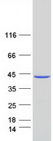 MAT2B Protein - Purified recombinant protein MAT2B was analyzed by SDS-PAGE gel and Coomassie Blue Staining