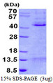 MCL1 / MCL 1 Protein