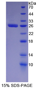 MCM2 Protein - Recombinant  Minichromosome Maintenance Deficient 2 By SDS-PAGE