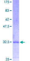 MESP1 Protein - 12.5% SDS-PAGE Stained with Coomassie Blue.