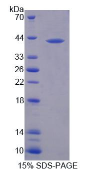 MFI2 / p97 Protein - Recombinant  Melanotransferrin By SDS-PAGE