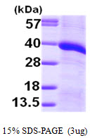 MGLL / Monoacylglycerol Lipase Protein