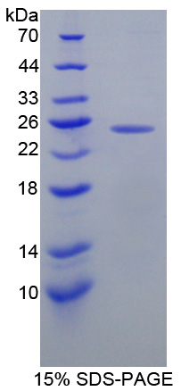MGMT Protein - Recombinant  O-6-Methylguanine DNA Methyltransferase By SDS-PAGE
