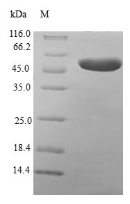 MLC3F / MYL1 Protein - (Tris-Glycine gel) Discontinuous SDS-PAGE (reduced) with 5% enrichment gel and 15% separation gel.