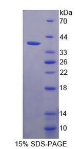 MLYCD / MCD Protein - Recombinant Malonyl Coenzyme A Decarboxylase By SDS-PAGE