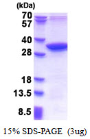 MMADHC / C2orf25 Protein