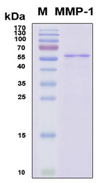 MMP1 Protein - SDS-PAGE under reducing conditions and visualized by Coomassie blue staining