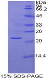 MMP1 Protein - Recombinant Matrix Metalloproteinase 1 By SDS-PAGE
