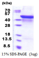 MMP1 Protein