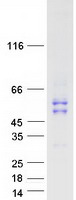 MMP1 Protein - Purified recombinant protein MMP1 was analyzed by SDS-PAGE gel and Coomassie Blue Staining